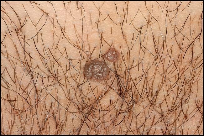 virus papiloma humano condiloma verruga genital