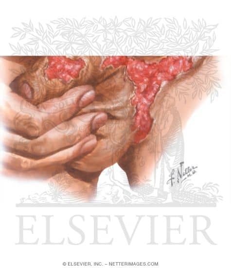 donovanosis-come-carne-elsevier