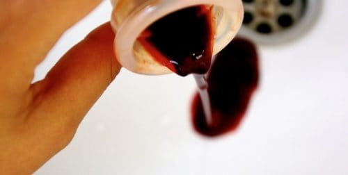 sangre menstrual